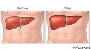 Liver Transplant in India