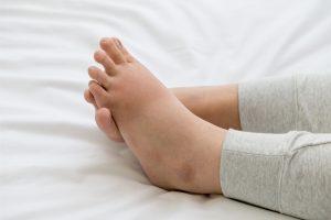Swelling in Leg