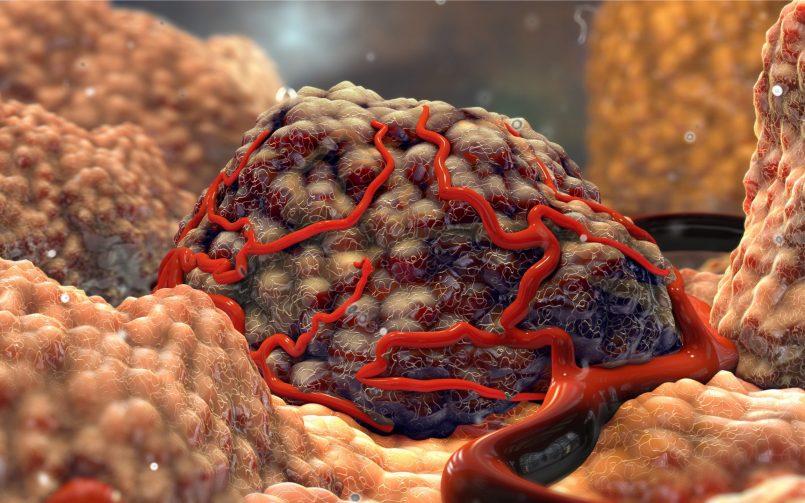 NET Tumour