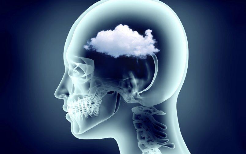COVID-19 Brain Fog